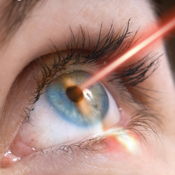 Eye Surgery or Ophthalmology